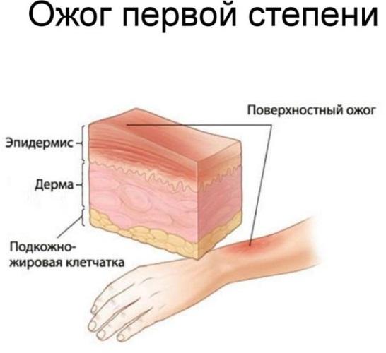 Тампоны с мазью вишневского в гинекологии