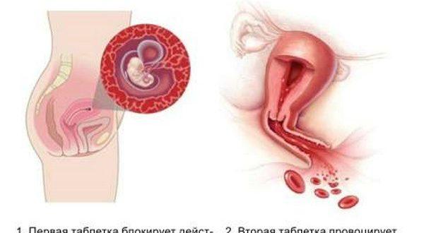 Вторые месячные после медикаментозного прерывания беременности. Сколько дней идут месячные после прерывания беременности медикаментами
