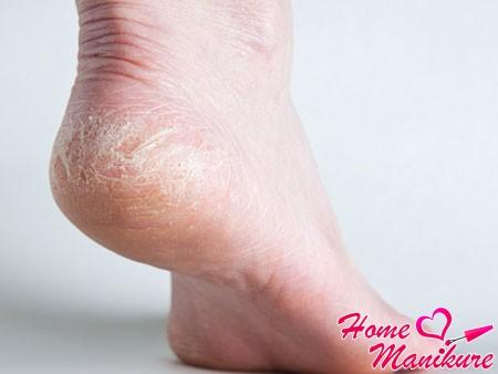 Сухая кожа на пятках - причины и лечение. Как избавиться от сухих пяток народными средствами